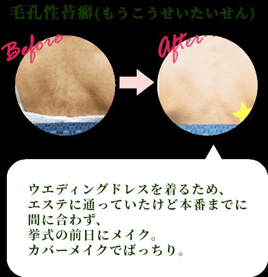 毛孔性苔癬(もうこうせいたいせん)